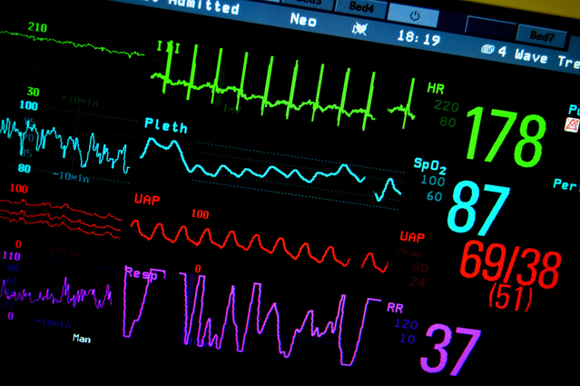 Patient-Care-monitor-Positively Outrageous Service - CX - Customer Experience
